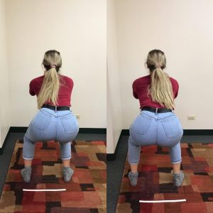 Bridging technique after hip surgery