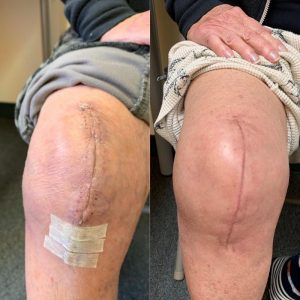 after knee surgery