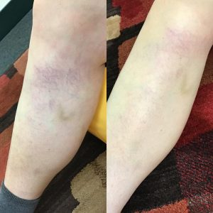 right leg: before and after