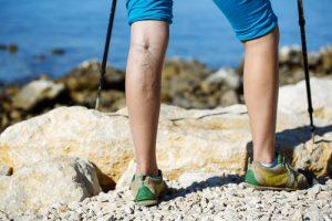 Woman with varicose veins on a leg walking using trekking poles