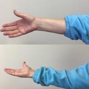 wrist-and-forearm