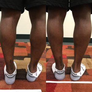 therapy after Achilles tendon surgery