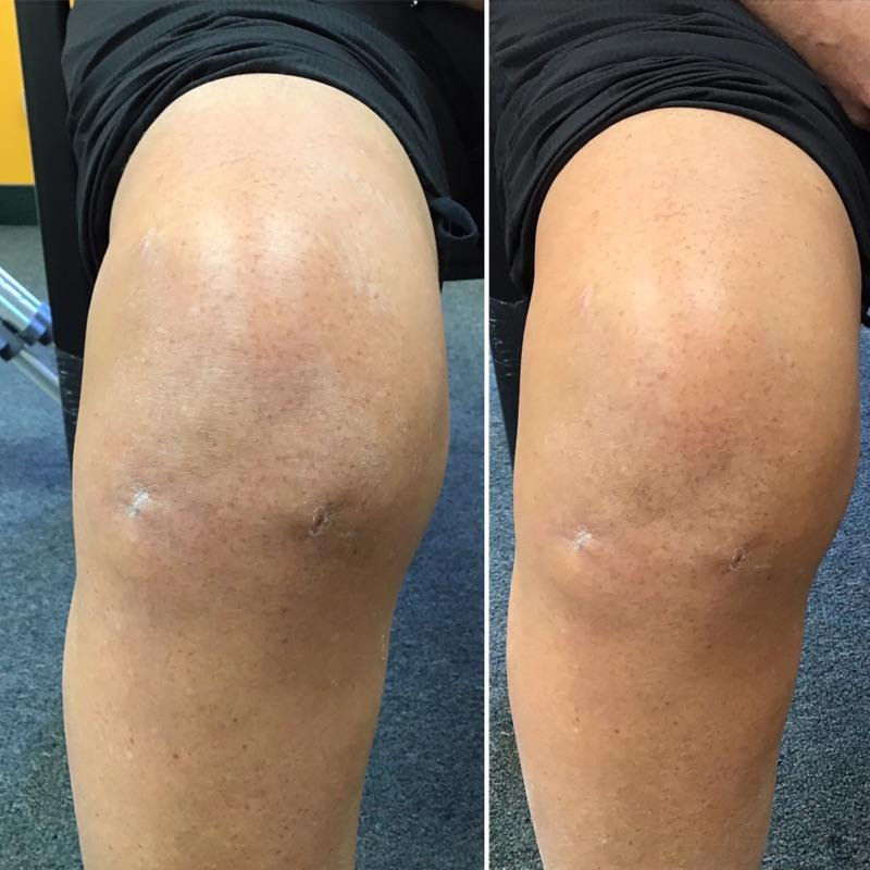 knee surgery recovery