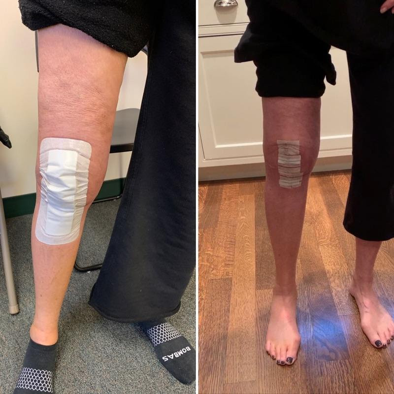 recovering from knee surgery